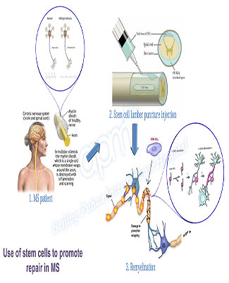 Stem Cell Treatment For Multiple Sclerosis Beijing Puhua