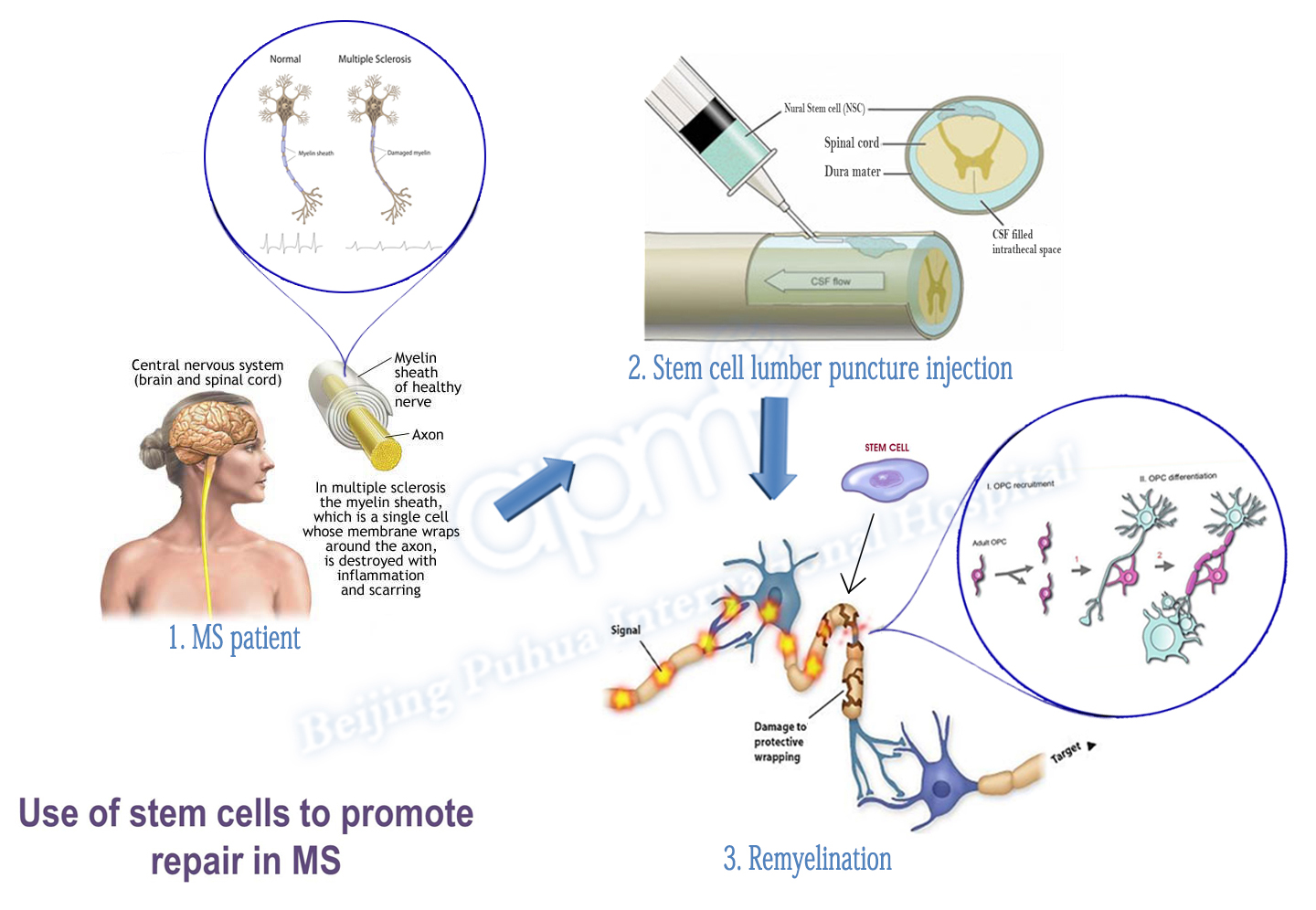 Adult stem cells multiple sclerosis