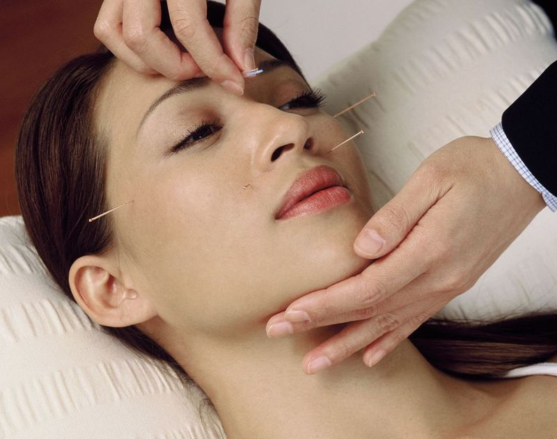 Acupuncture for skincare