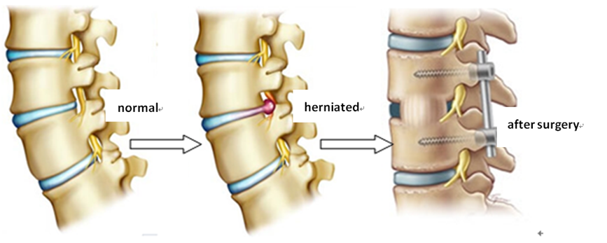 lumbar disc herniation treatment - diagnoses - beijing puhua, Cephalic Vein